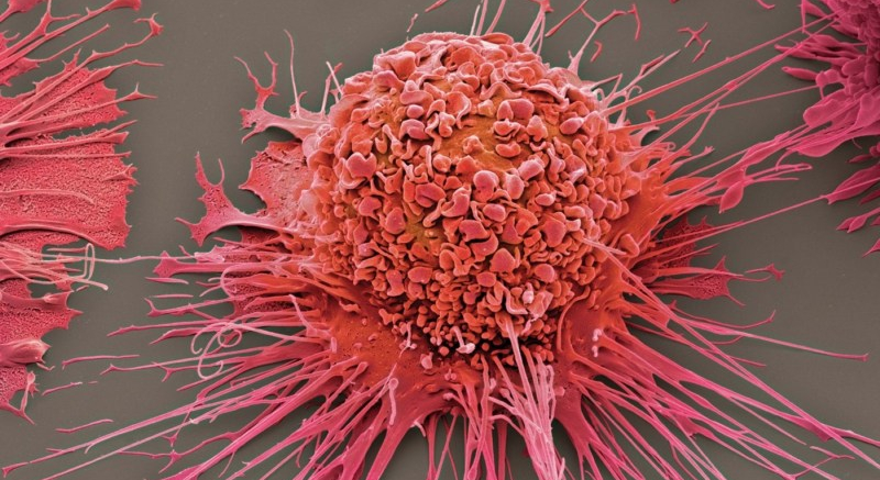 Cancer Cells Send MicroRNA In Exosomes to Macrophages, Rewiring Them forTumorigenesis
