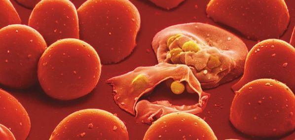 Phenom-Malaria-parasite-631